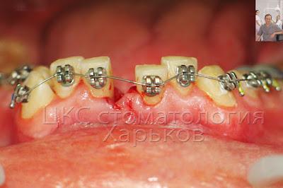 Сверхкомплектный зуб удален и фиксирована ортодонтическая дуга