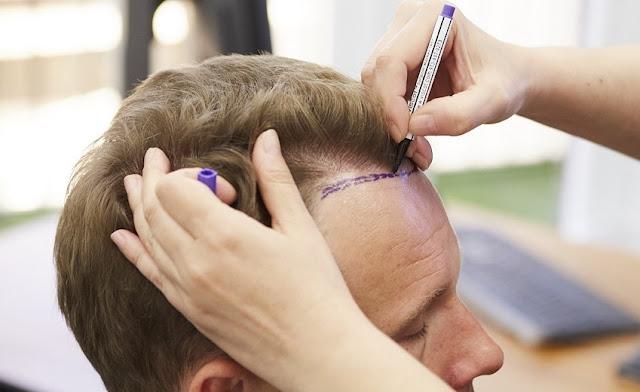 duke shënuar në kokën e burrit me laps ku do bëhet transplanti i flokëve