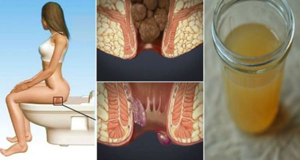 Treating Hemorrhoids at Home: With One Ingredient From Your Kitchen You Will be Cured in 24 Hours!