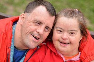 Sindrom Down - Wikipedia bahasa Indonesia, ensiklopedia bebas, Sindrom Down - Gejala, penyebab dan mengobati, Pengertian Down Syndrome, Penyebab, dan Pencegahannya