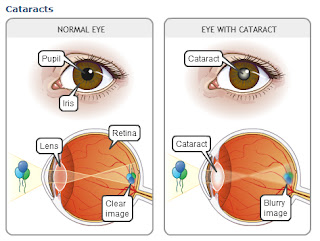 Difference Between Healthy Eye & Eye With Cataract