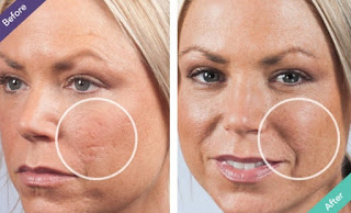 A Permanent Cure fоr Acne Scars ?