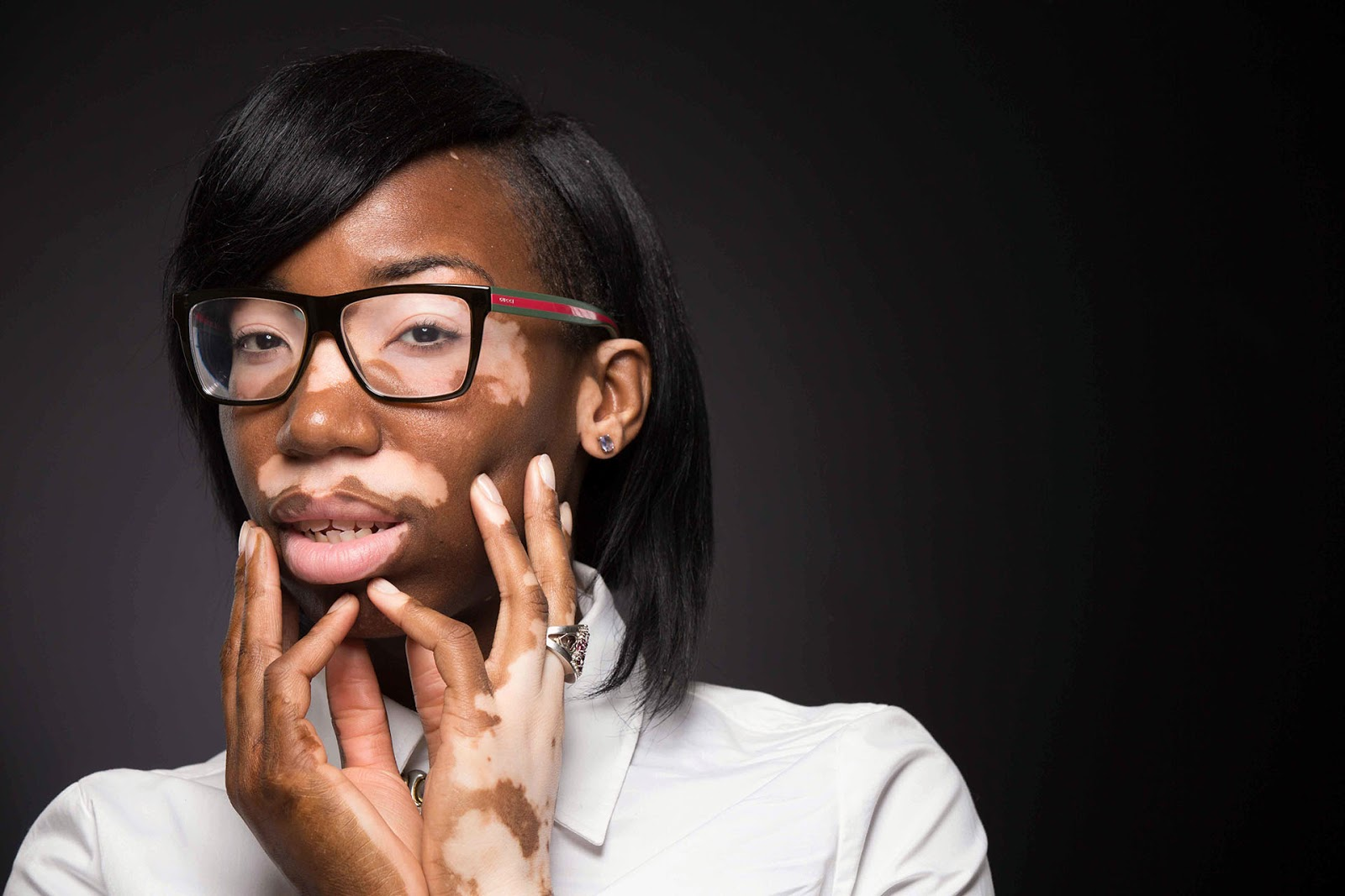 Watch This Poet Highlight The Beauty of Being A Vitiligo Model In 60