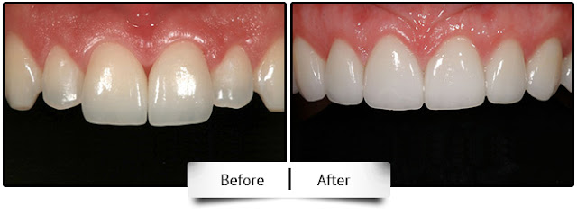 jamnagar dentist done dental crown