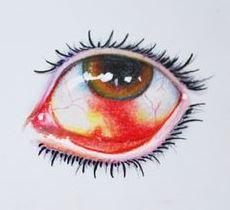 Dibujo de Hiposfagma o sangre en el ojo