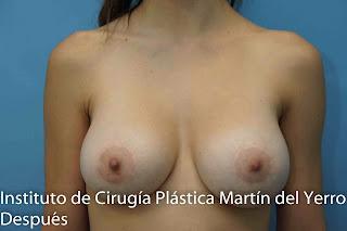 corrección con prótesis de mama anatómicas