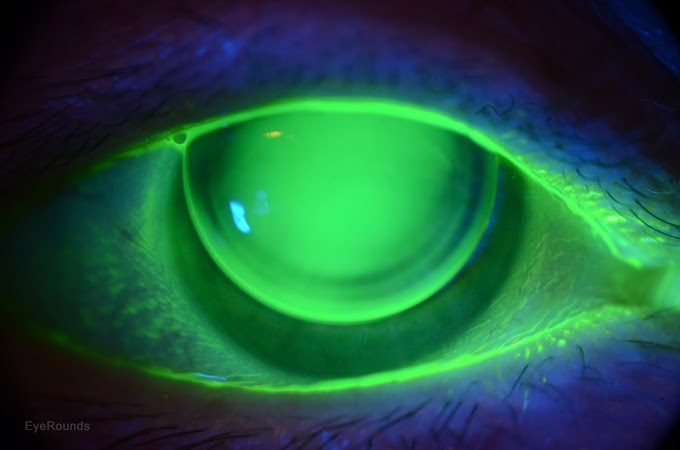How to select first base curve of trial RGP lens for keratoconus?
