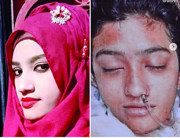 This Student Died After She Was Set On Fire For Reporting immoral Harassment, Bangladesh, News, Local-News, Murder, Crime, Criminal Case, Police, Arrested, Molestation, Teacher, World