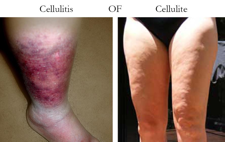 cellulitis behandeling