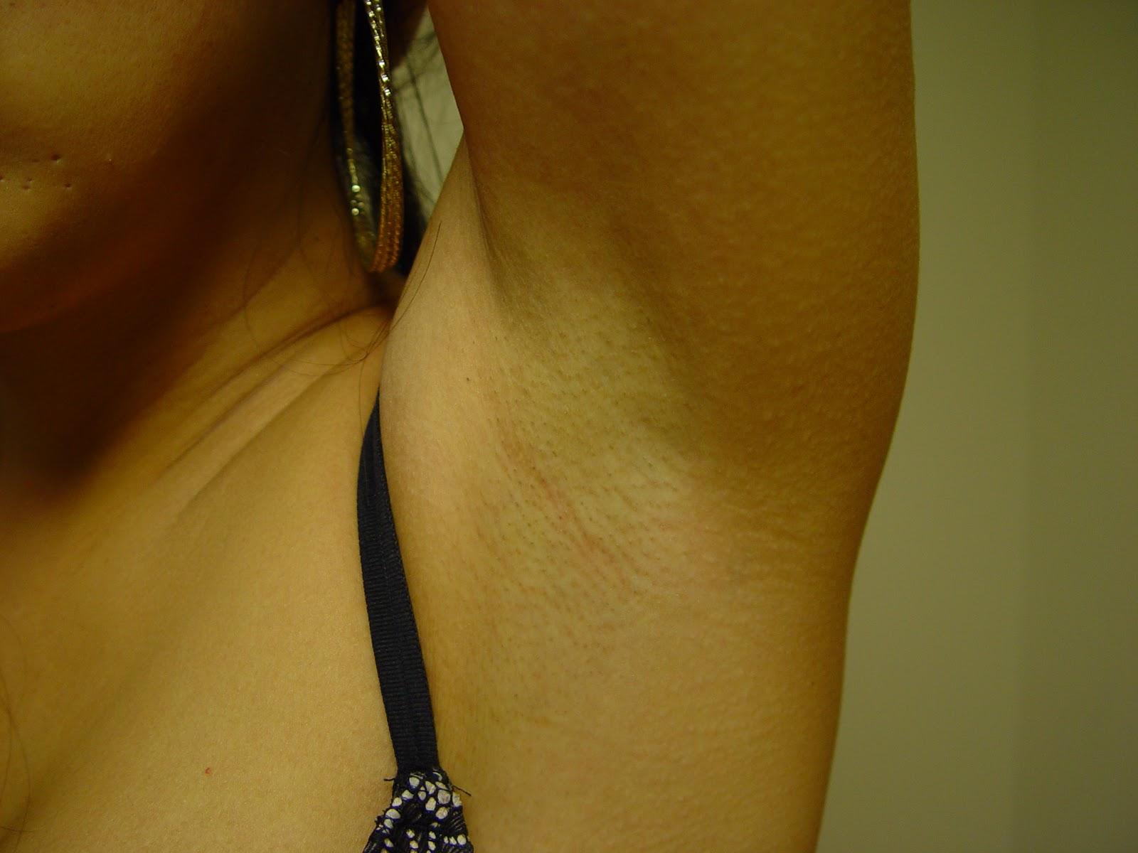 breast augmentation scars photos jpg 1152x768