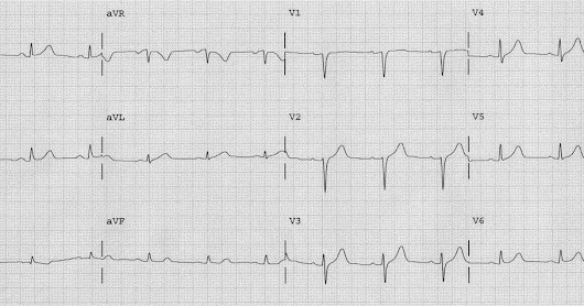 Ten cases of hyperacute T-waves in V4-V6