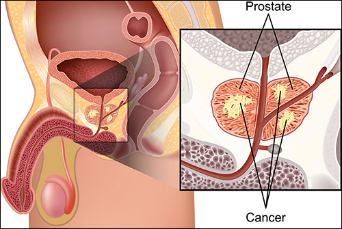 Prostate cancer, diet for prostate cancer, diet in prostate cancer