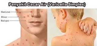 Obat Cacar Air Resep Dokter
