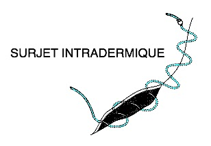 surjet intradermique point fil pansement infirmier soin