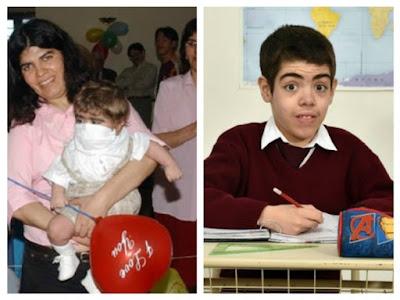 Fallece el primer bebé trasplantado del corazón en Argentina