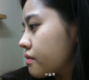 짱이뻐! - I Had Nose Job Plastic Surgery At Wonjin Plastic Surgery