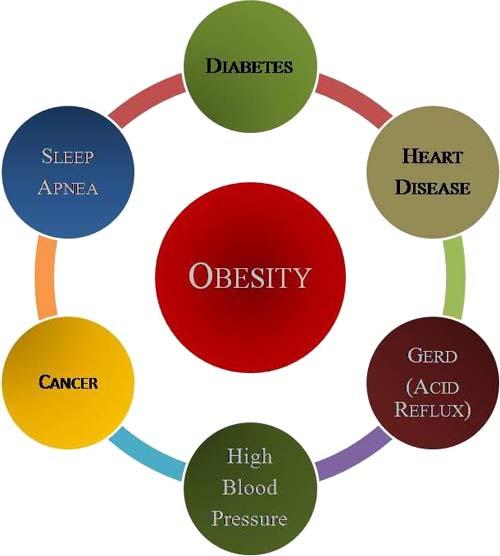 Apel atau Pir, Tipe Obesitas Paling Berbahaya?