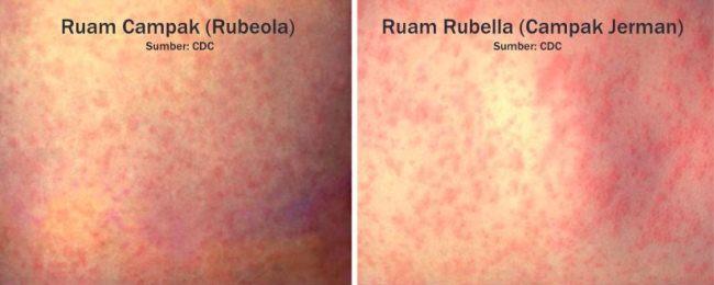Perbedaan ruam campak dan rubella