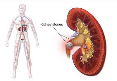 Important Information on Uri Acid Kidney Stones