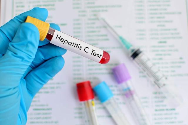 Penularan Hepatitis C yang Patut Di waspadai