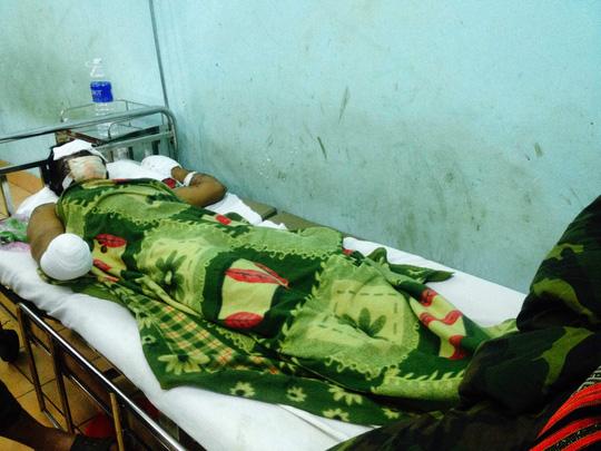 Gia Lai: Cuốc trúng mìn, 2 người bị thương nặng