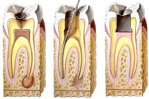caries en tratamiento de conducto endodoncia