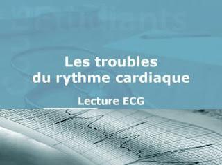 Les troubles du rythme cardiaque Lecture ECG .pdf