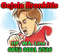 5 Gejala dan Ciri-ciri Penyakit Bronkitis Pada Anak
