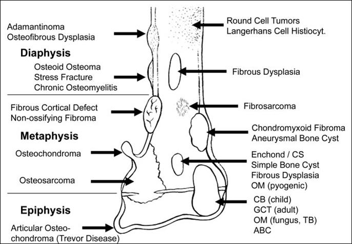 bone-tumour
