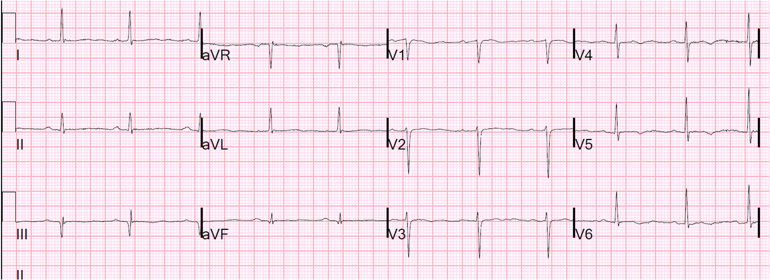 there is an abno...Q Wave