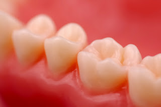 Comment inverser la gingivite