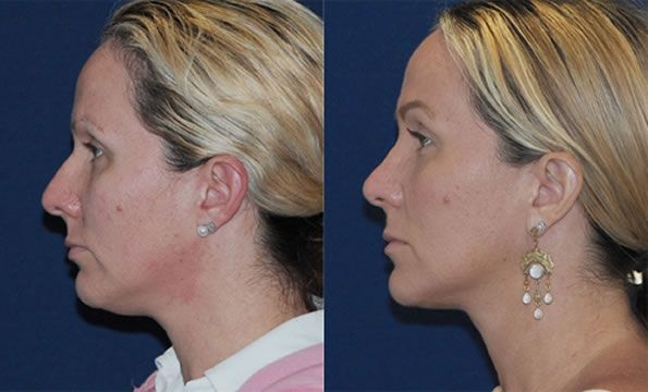 Face Toning System That Restores Youth To The Face For Men And Women