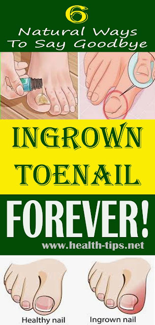 Treat Your Ingrown Toenail With These 6 Natural & Homemade Remedies#NATURALREMEDIES