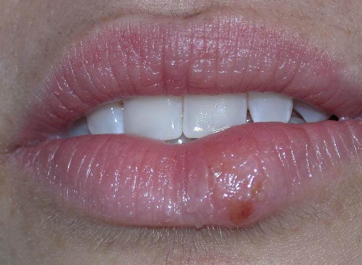 Huile de niaouli herpes dating 1