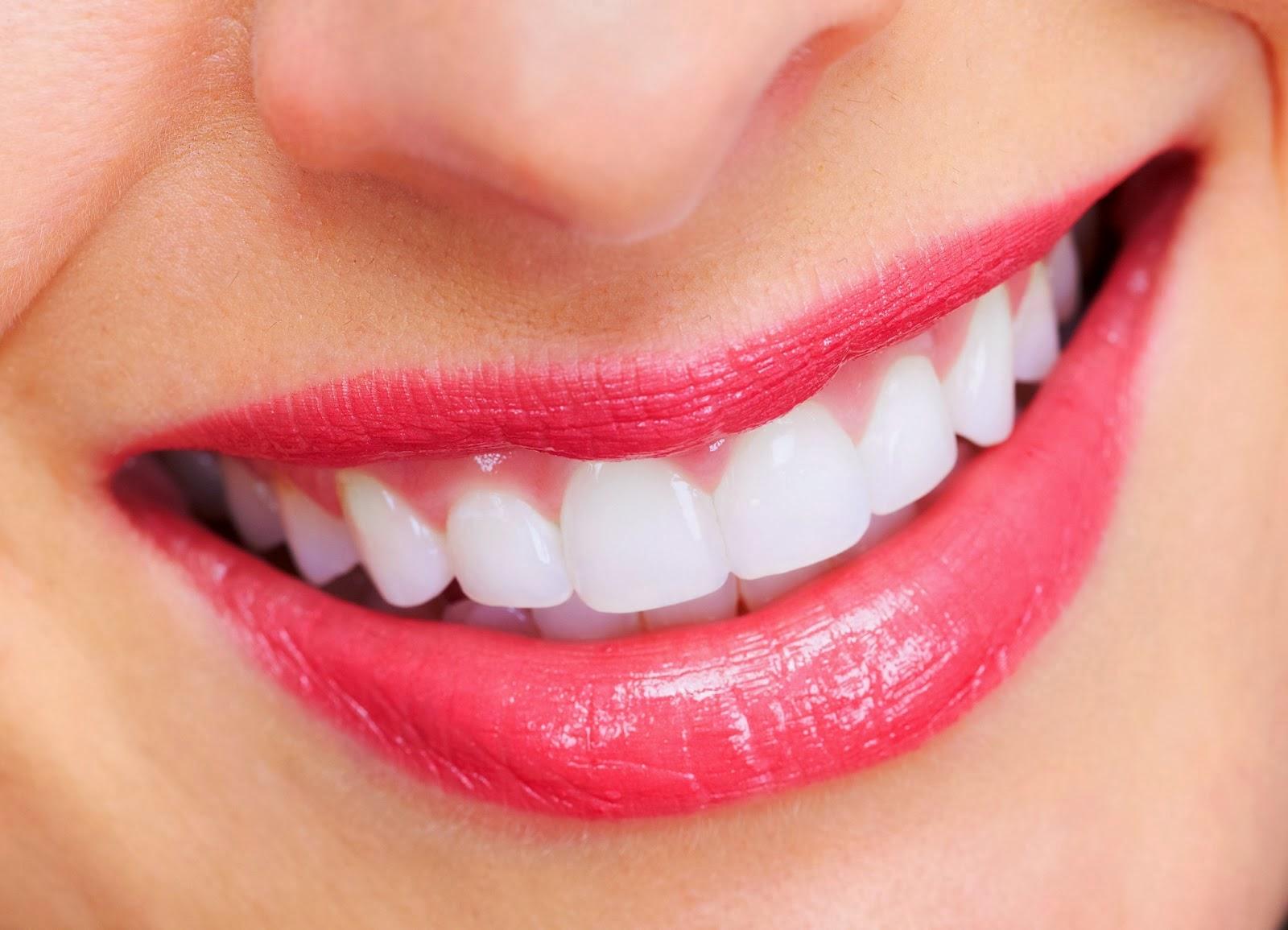 điều cần biết về bọc răng sứ -5