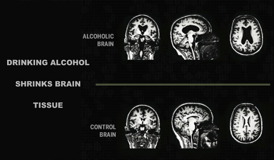 Alcohol Causes Brain Tissue To Shrink