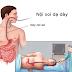 Nội soi dạ dày là gì? những điều cần biết