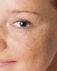 resep kecantikan menghilangkan flek hitam di wajah