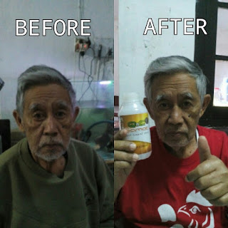 Obat Pilek Menahun Di Apotik Herbal