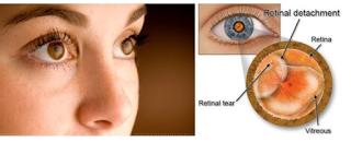 Cara Pengobatan Penyakit Ablasio Retina