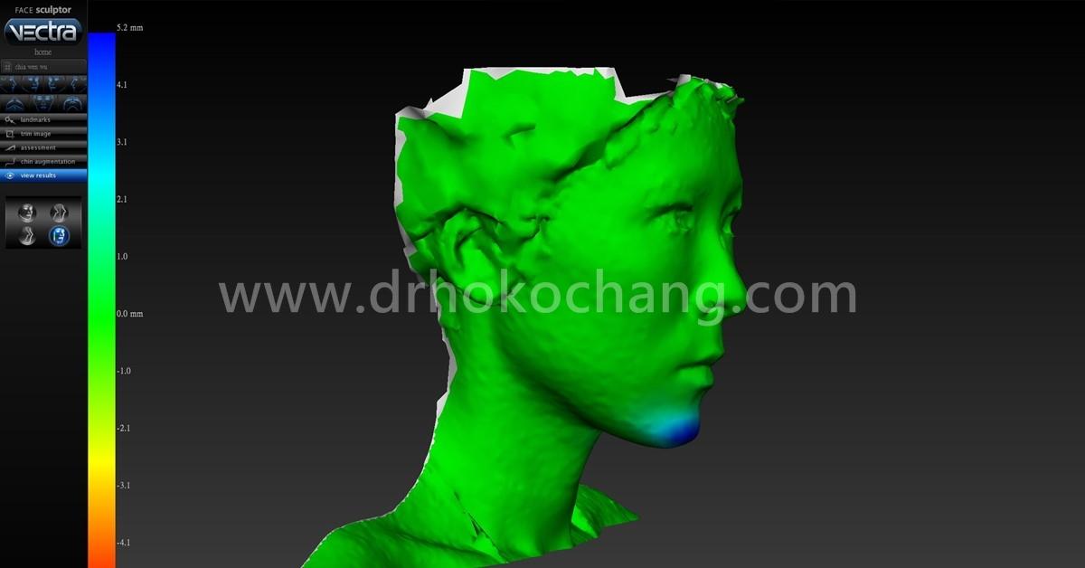 台中3D列印下巴-3dchin05