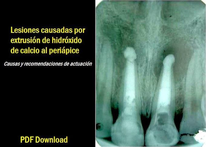 PDF: Lesiones causadas por extrusión de hidróxido de calcio al periápice: Causas y recomendaciones de actuación
