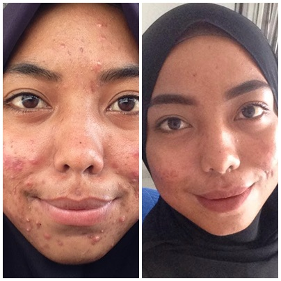 Skincare Rutin (Part 1) | From The Beast To The Beauty ❤