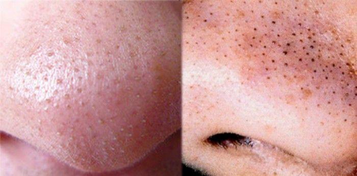 Hasil gambar untuk macam macam komedo pada wajah