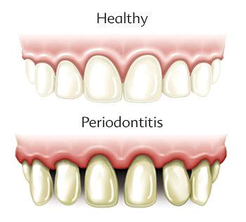 Periodontal (Gum) Disease treatment image