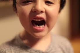 बच्चों के दांतों में इन्फेक्शन : जानिए इसके लक्षण और उपाय