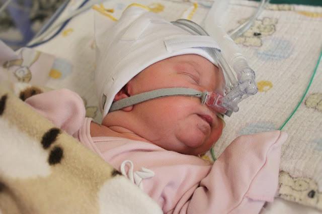 lapsivettä keuhkoissa, synnytyskertomus