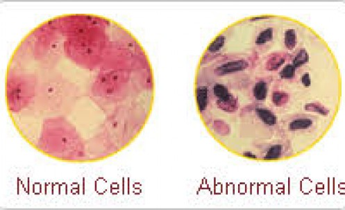 Detecting Abnormal Cells Causes Of Cervical Cancer
