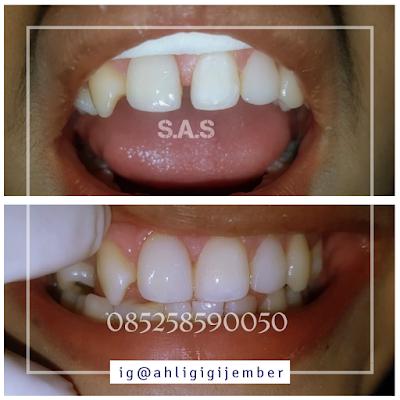 Foto hasil perbaikan gigi depan renggang bercelah dan berjarak dengan veneer