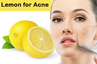 Removing Acne Marks with Natural Remedies